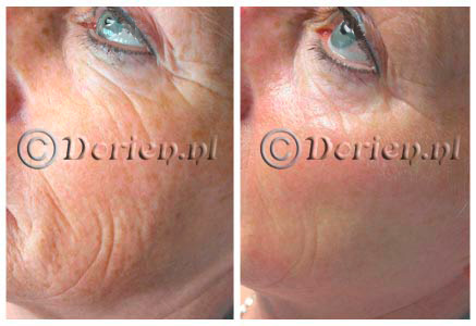 Dorien anti-ageing center Beauty Pixel voor en na